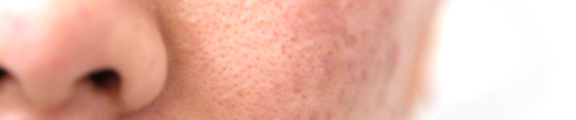 pore dilaté laser